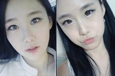 韩国ID和爱我整形外科做面部轮廓怎么样?