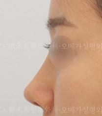 韩国omega整形外科医院隆鼻案例对比图_术后