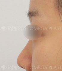 韩国omega整形外科医院隆鼻案例对比图_术前