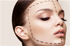 韩国faceline与丽珍医院的脸型手术怎么样?