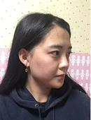 在GNG做了面部脂肪填充,瞬间重返18岁!_术前