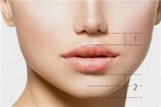 韩国哪家医院人中缩短术后自然无疤痕?