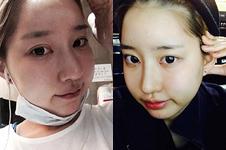 韩国灰姑娘和爱我整形外科双眼皮修复案例对比!