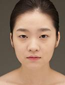 韩国iWell爱我整容外科-韩国爱我整形外科面部轮廓整形案例!