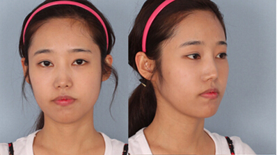 突嘴手术前的面部