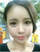 韩国ID整形医院-ID医院面部自体脂肪填充+鼻修复恢复过程图片