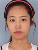 韩国巴诺巴奇整形外科-巴诺巴奇做凸嘴手术,术后效果好自然!