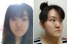 在韩国做双鄂手术,前后对比差别实在太大!