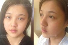 韩国DA医院做面部脂肪填充+眼鼻整形对比案例!