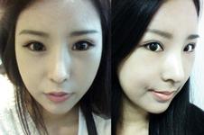 在丽珍做了v-line和双眼皮整形,术后简直像换脸!