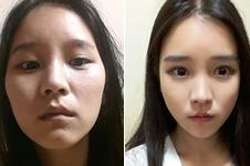 这三家韩国医院做面部轮廓,手术特色竟大不相同!