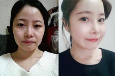 面部脂肪填充+眼鼻整形,为何术后能达到减龄效果?