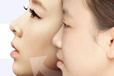 韩国topclass整形医院立体脂肪填充怎么样?贵吗?