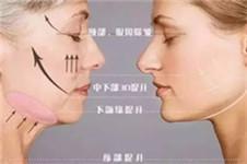 韩国希克丽医院面部线雕提升手术 瘦脸提升双功效