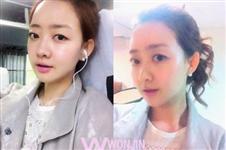 韩国原辰医院下巴+双颚手术给我完美脸型