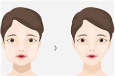 JELIM整形外科颊脂垫去除 瘦脸无需削骨