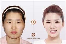 面部轮廓+眼鼻整形 博朗温让她拥有新的人生