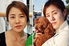 韩国做下颌角手术价格是多少,效果好吗?