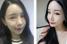 韩国爱琳医院做面部轮廓整形优势有哪些?