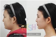 芙莱思V脸吸脂轮廓术 不削骨实现瘦脸紧肤效果