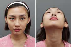 韩国爱婷和美自人,谁做假体隆鼻更自然?