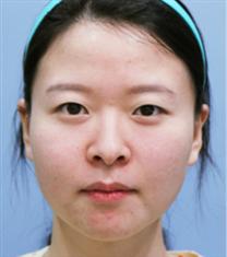 韩国JYP整形外科双眼皮整形对比图