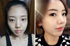 韩国麦恩和秀美颜,谁做面部脂肪填充效果好?