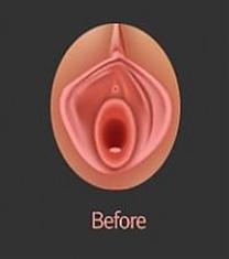 LADYURO女性医院阴唇整形案例对比