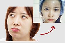 脂肪填充全脸两个月经历,高清大图!