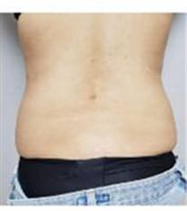 韩国维摩整形外科腰腹吸脂对比图