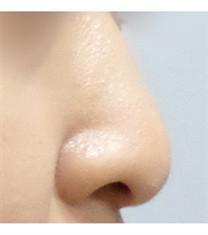 韩国美尔韩医院埋线隆鼻对比案例图