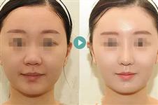 面部埋线提升能维持多久,术后要注意什么?