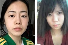 韩国原辰和芙莱思案眼综合案例对比