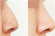 韩国4月31日和凯伦秀两家隆鼻技术,谁更牛?