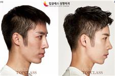 TOPCLASS整形外科:男性隆鼻整形正流行