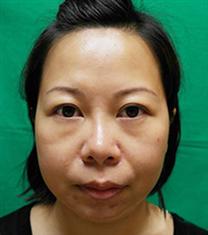 韩国高益秀整形外科埋线提升