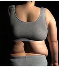 Ellium爱丽美整形外科背部吸脂对比图