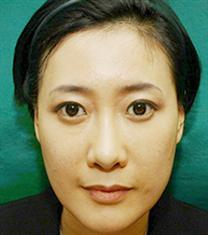 韩国高益秀整形自体脂肪移植案例