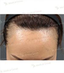毛发移植对比案例