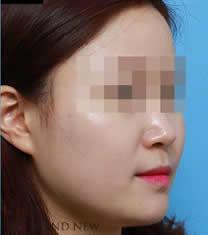 韩国Brandnew整形医院轮廓针注射对比图