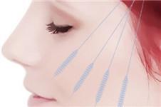 面部线提升之4D提拉回春术效果怎么样?