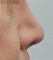 朱莉亚JULIA整形医院隆鼻案例