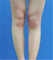 nslim吸脂医院吸脂瘦小腿案例
