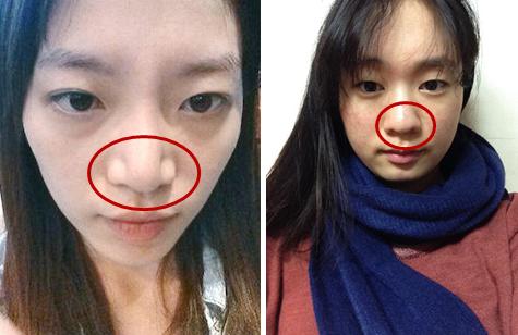 鼻综合整形术前鼻部形态展示