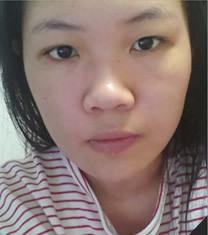 娜飞整形外科Vline手术+鼻综合整形对比图