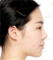 3D鼻整形+眼整形+额头提升对比案例