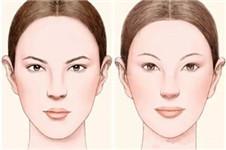 案例分析:下巴整形+眼鼻综合整形后会怎么样?