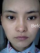 韩国iWell爱我整容外科-爱我整形医院3个月颧骨整形效果怎么样?