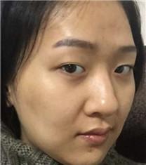 眼鼻整形+脂肪填充案例