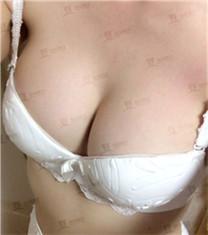 假体隆胸对比案例